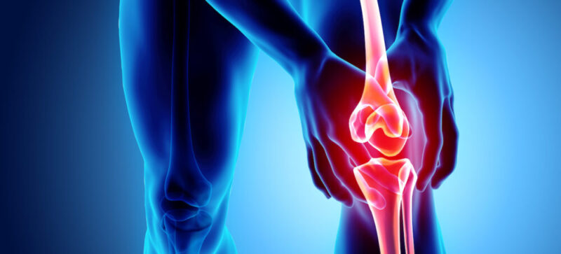 Easy Ways for Arthritis Pain Relief and its Relative Supplements